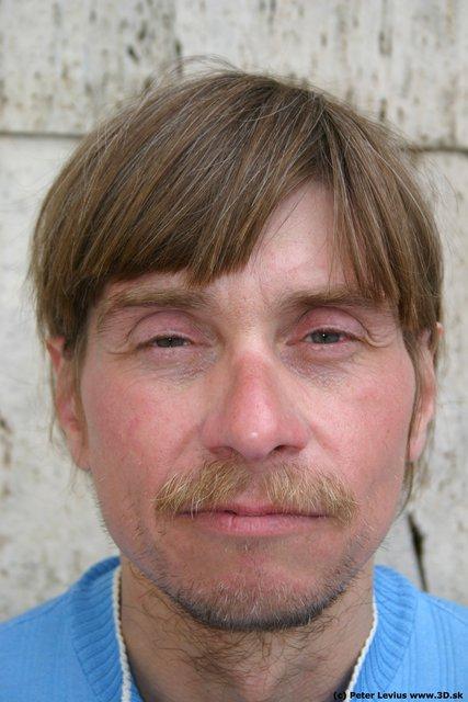 Head Man White Birthmarks Slim