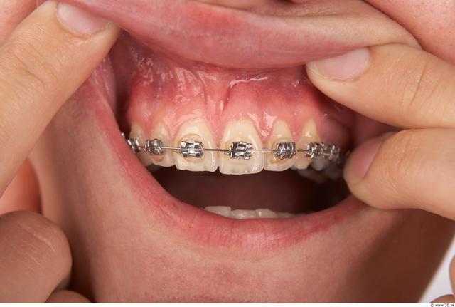 Whole Body Teeth Woman Braces Slim Studio photo references