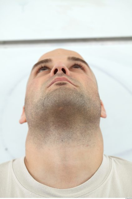 Neck Man White Overweight Bearded