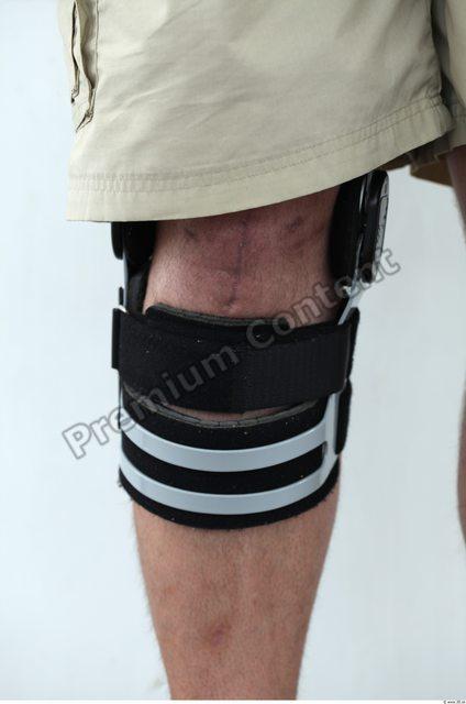 Knee Man White Overweight