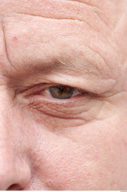 Eye Man White Overweight Wrinkles