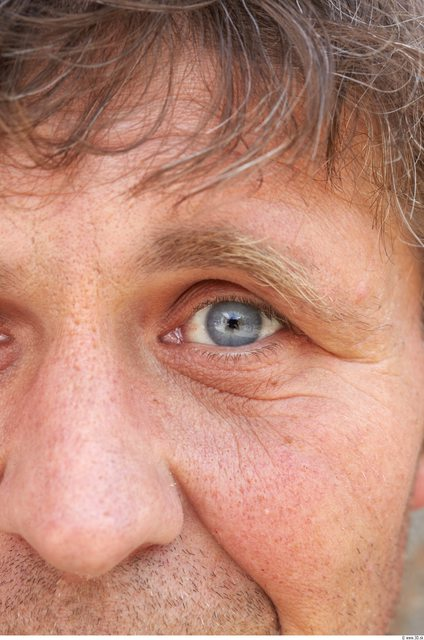 Eye Man White Average Wrinkles