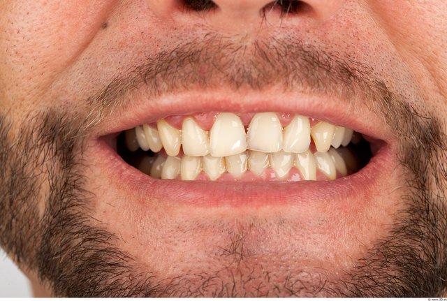 Whole Body Teeth Man Casual Average Bearded Studio photo references