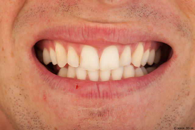 Teeth of bodybuilder Andrew