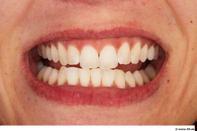 Teeth of Little Caprice