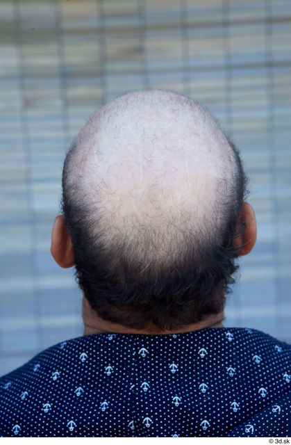 Head Hair Man White Casual Chubby Bald Street photo references