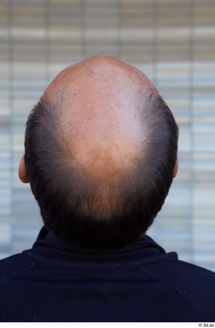 Head Hair Man White Sports Average Bald Street photo references