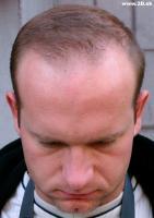 Head Photo003