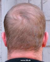 Head Photo007