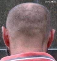 head5 050