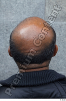Street  601 bald hair head 0002.jpg
