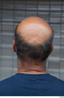 Street references  610 bald hair head 0001.jpg