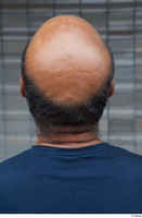 Street references  610 bald hair head 0002.jpg