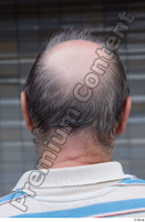 Street  654 bald hair head 0001.jpg