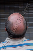 Street  654 bald hair head 0002.jpg
