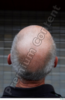 Street  661 bald hair head 0002.jpg