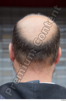 Street  662 bald hair head 0001.jpg