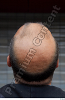 Street  662 bald hair head 0002.jpg