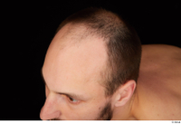 Orest bald hair 0002.jpg