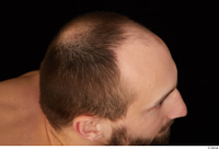 Orest bald hair 0007.jpg