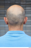 Street  681 bald hair head 0001.jpg