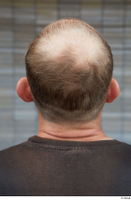 Street  682 bald hair head 0001.jpg