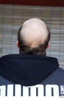 Street  724 bald hair head 0002.jpg