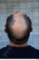 Street  733 bald hair head 0001.jpg