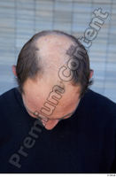 Street  733 bald hair head 0002.jpg