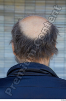 Street  734 bald hair head 0001.jpg