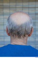 Street  751 bald hair head 0001.jpg