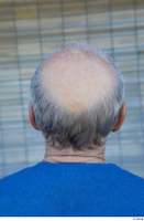 Street  751 bald hair head 0002.jpg