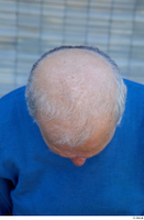 Street  751 bald hair head 0003.jpg