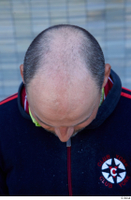 Street  767 bald hair head 0001.jpg