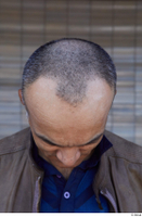 Street  787 bald hair head 0001.jpg
