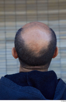 Street  801 bald hair head 0001.jpg