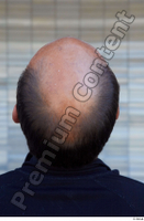 Street  805 bald hair head 0001.jpg