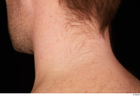 Groom references of Albin chin hair mouth stubble beard 0002.jpg