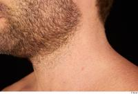 Groom references of Herbert 10years chin mouth stubble beard 0003.jpg
