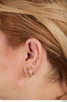 Photos of Finley Newman ear 0001.jpg
