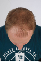 Photos of Jameson Hahn hair head 0006.jpg