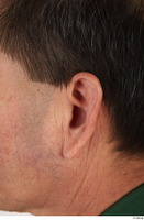 Photos of Sone Shino ear 0001.jpg