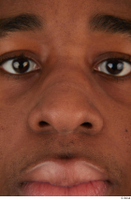 Photos of Allvince Epps nose 0001.jpg