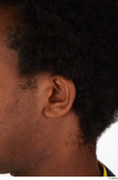 Photos of Allvince Epps ear 0001.jpg